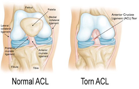 torn-acl-injruy